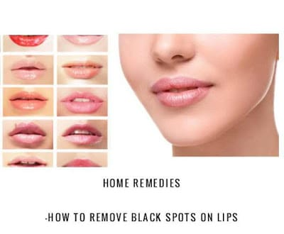 Home Remedies to Get Rid Of dark Spots On Lips