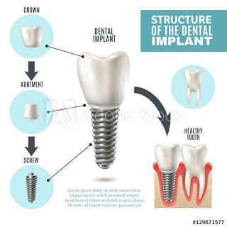 3 Reasons Why You Shouldn't Panic Before and After dental Implants surgery
