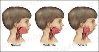 Mandibular Hypoplasia Overview, Symptoms, Causes, Diagnosis, Treatment, And Surgery