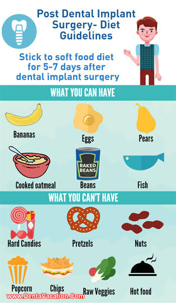 17 Best foods to eat after dental implant surgery For quick recovery