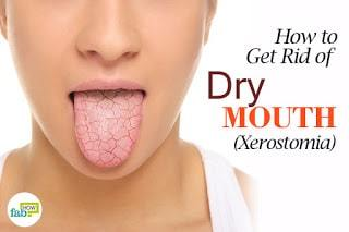 Dry Mouth Relating to Aging