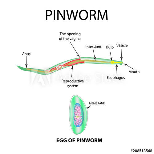 Diseases Caused by Pinworm, Thread- Worm (Enterobius Vermicularis)