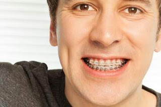How Metal Braces Measure Up To The Clear Dental Aligner Braces