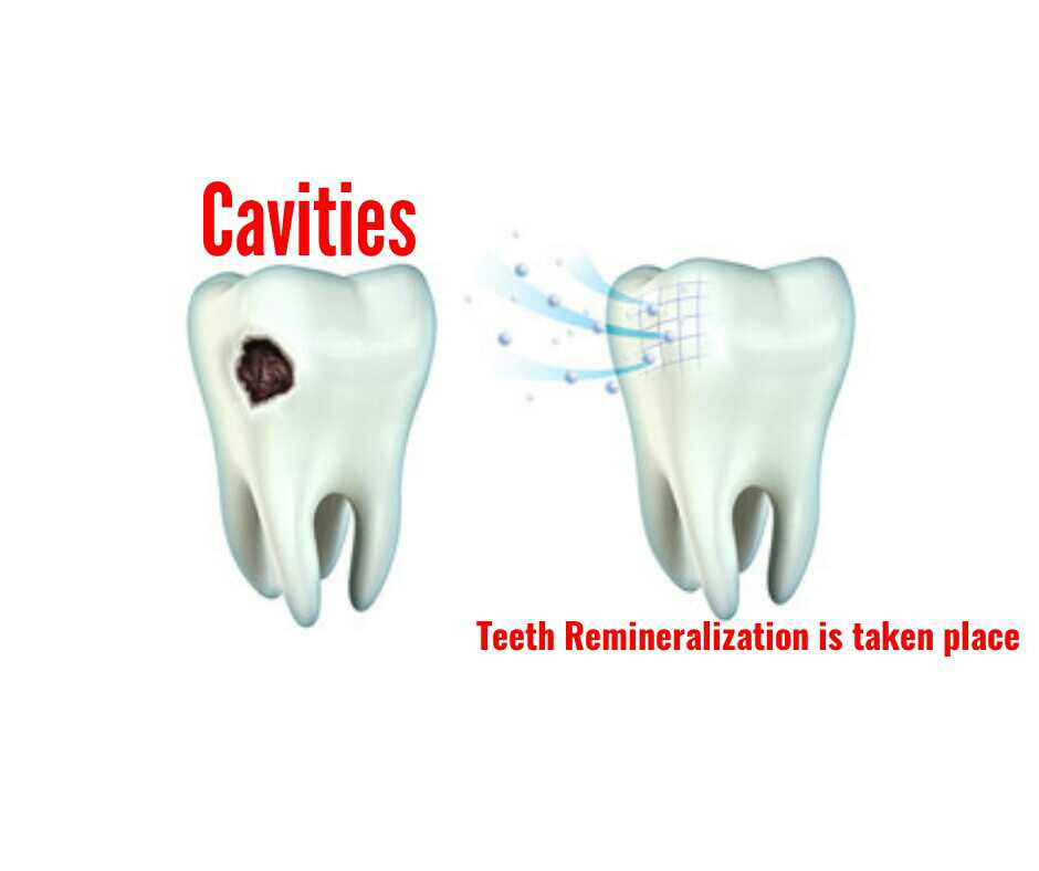 3 steps to achieve teeth remineralization and whitening them