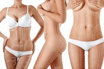 LIPOSUCTION- THE LIFE TRANSFORMING SURGERY