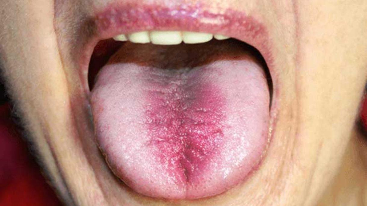 Primeros auxilios para una lengua quemada