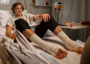 Young Victim Was Injured By Carnivore Sea Lice At Melbourne Beach