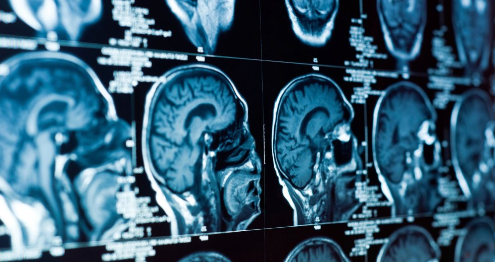 Alzheimer Early Symptoms Detected By Artificial Intelligence