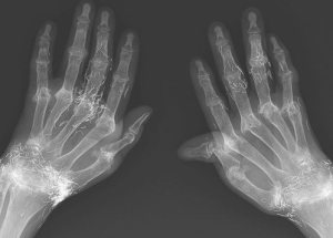 Bizarre Medical Case: A Woman has her Wrists full of Gold