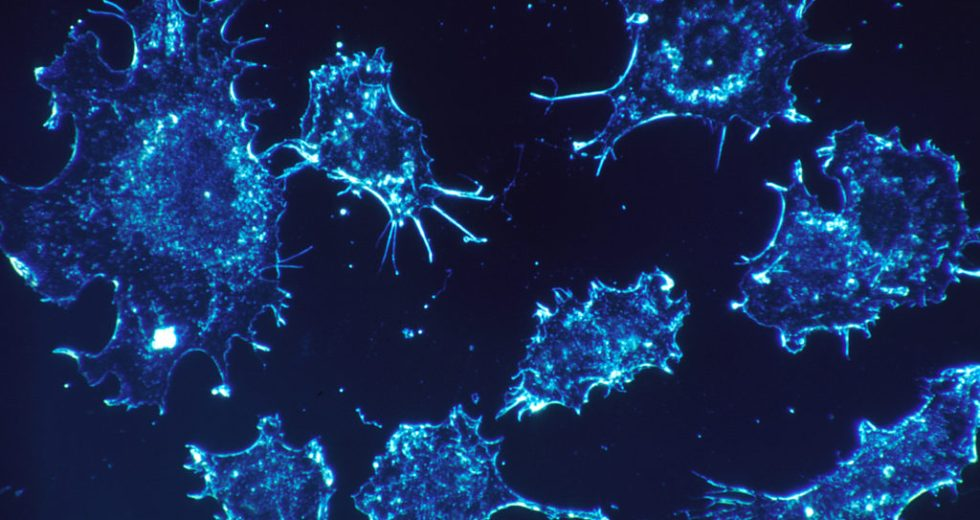 Groundbreaking Discovery: PHD Student Found a Method to Stop Cancer Cells from Spreading