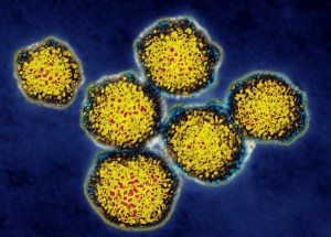 Two Restaurants in Spanish Fork, Utah, Possible Source for Hepatitis A Infection