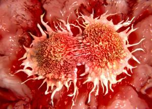 Surviving Cancer Linked To Where You Live, A New Study Revealed