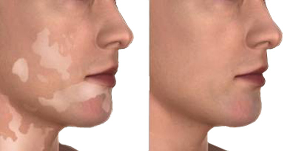 A Possible Treatment For Vitiligo Has Been Recently Discovered At The Yale University