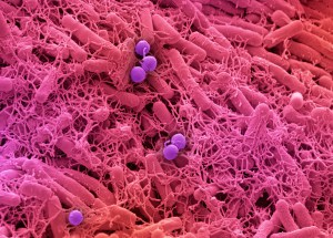 Common Skin Bacteria Protects Against Cancer
