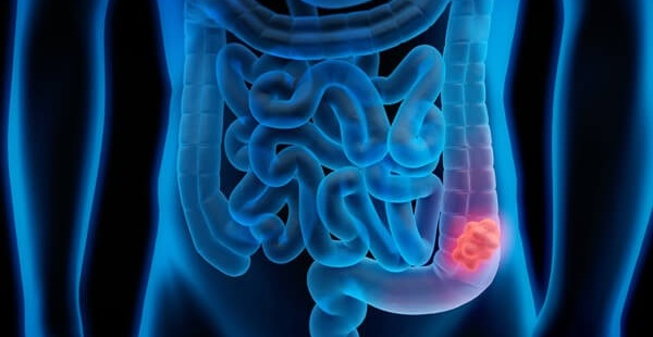 Australian Have To Wait Up To 6 Months To Get Diagnosed With Bowel Cancer