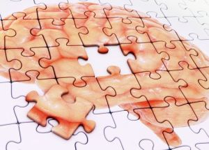 Dopamine Deficit Could Be Linked To Early Stages Of Alzheimer's Disease Development