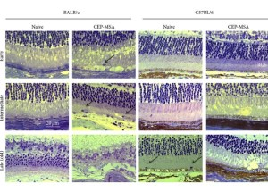 New Plan to Stop Retinal Degeneration Experimented on Mice