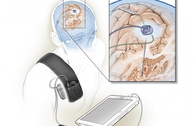 Self-Adaptive Brain Implant Might Reduce Parkinson's Disease Motor Symptoms