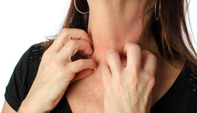 Woman Experiences Weird Allergic Reaction to Antibiotics