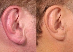 Indian Doctor Claims That 95% of The People With Ear Crease Have Heart Disease