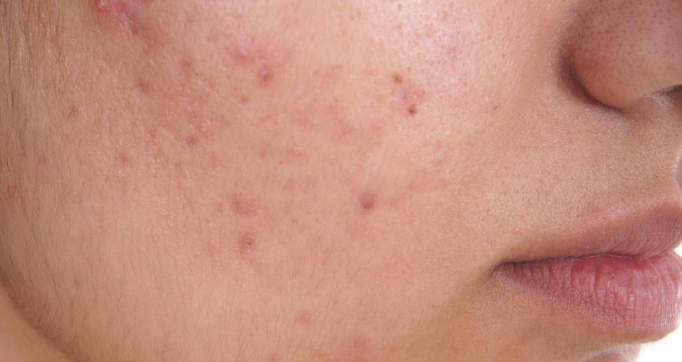8 Simple Methods For Treating Acne At Home
