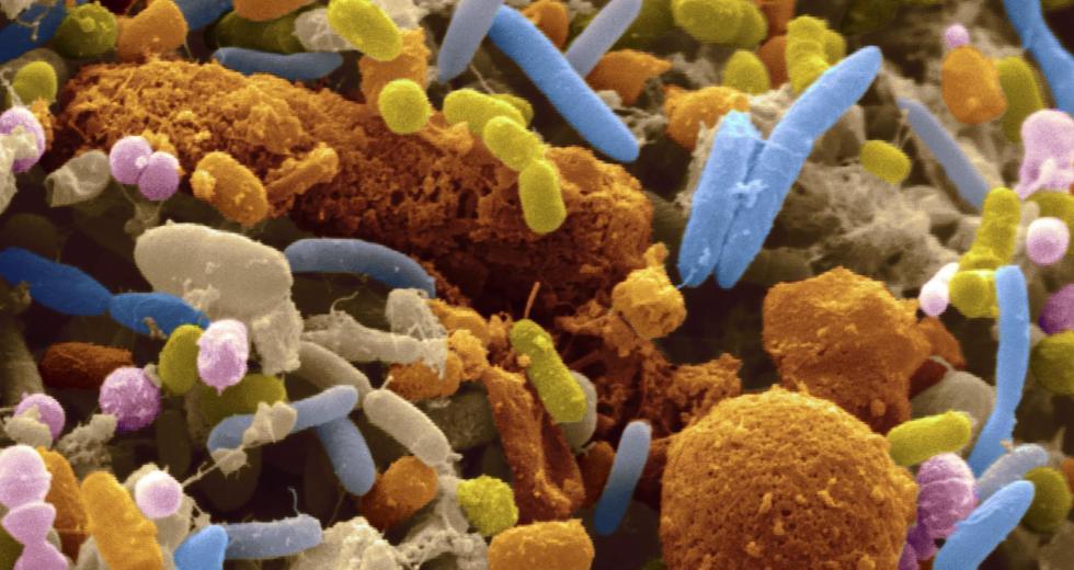 Human Gut Bacteria Present Over 6,000 Antibiotic-Resistant Genes