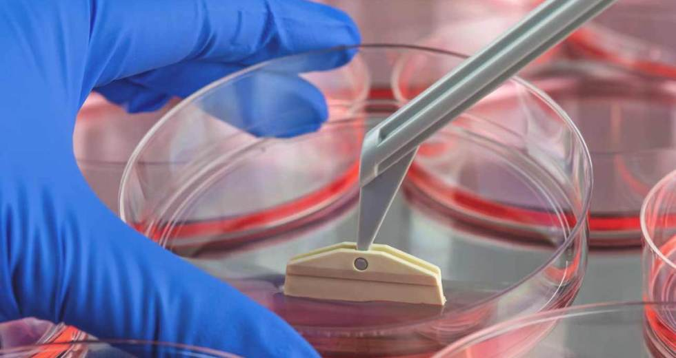 Patients with Multiple Sclerosis can be Helped by Stem Cell Therapy