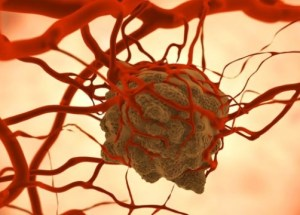 Improved Cancer Therapy Is Currently Under Development, Based On Theranostics