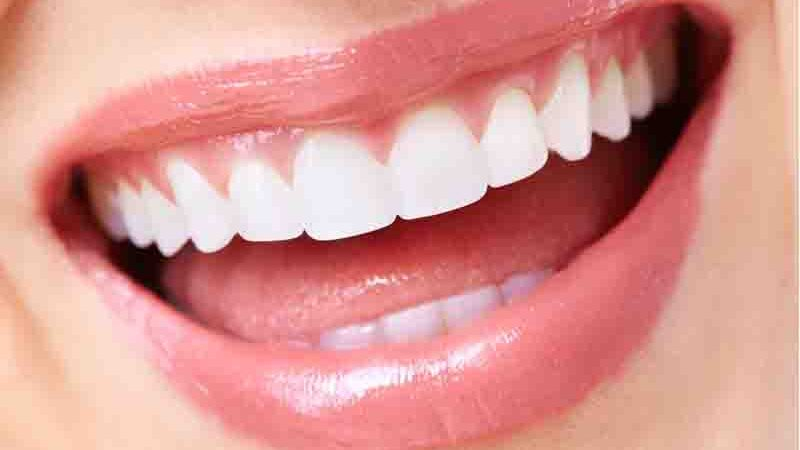 Immune System Could Affect Our Teeth, A Recent Study Revealed