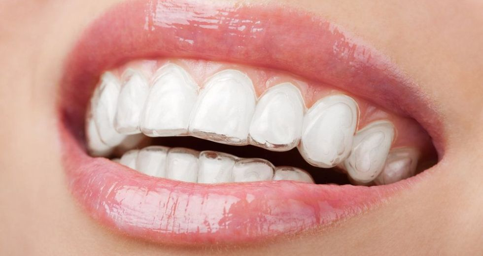 What to Expect From an Invisalign Treatment