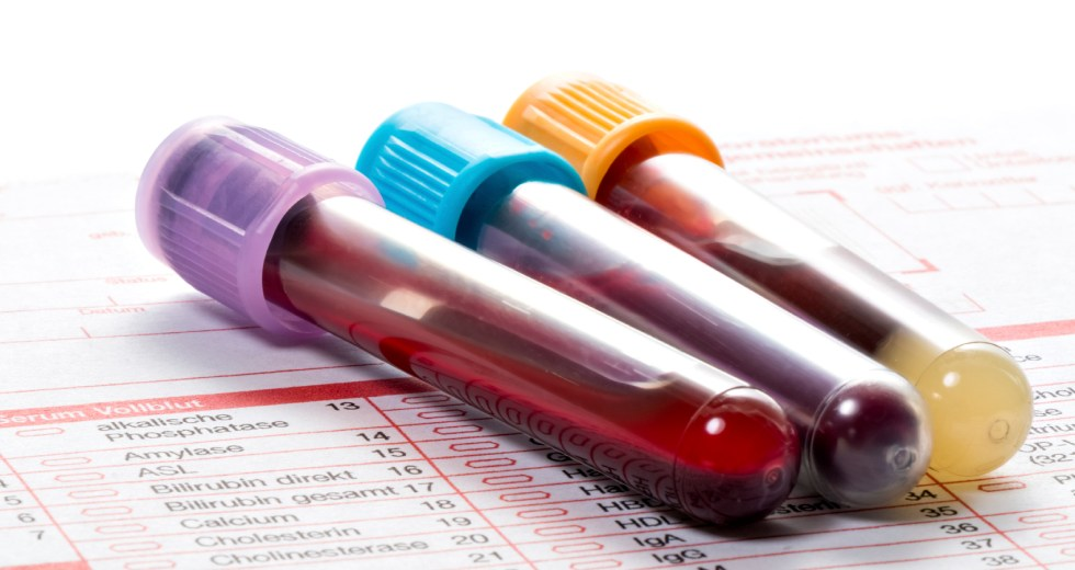 Blood Tests That Calculate A Person's Risk Of Death Developed By Scientists