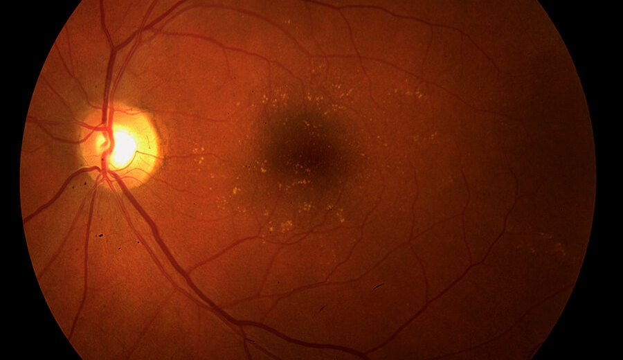 Age-related Macular Degeneration Could Get a Cure Soon