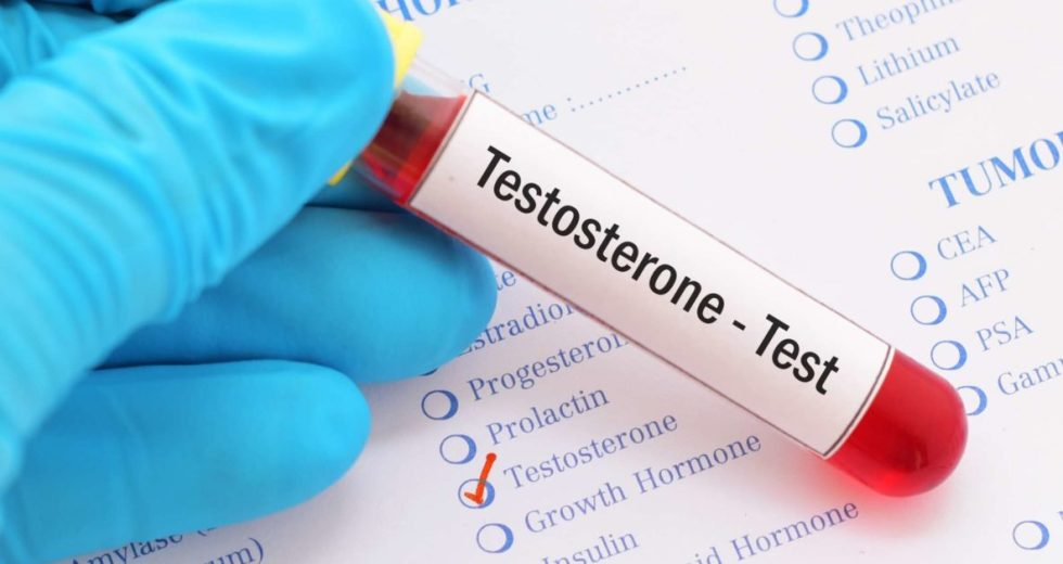Testosterone Doesn't Govern Men's Aggression and Sexuality