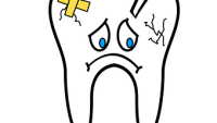 How long does the average cavity filling take?