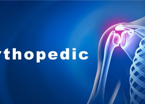 A Practical Guide to Finding the Best Orthopedic Doctor in Your City