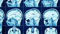 Life After Covid-19: New Tech Could Help Patients Recover From Neurological Effects
