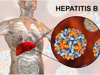 Hepatitis B: Symptoms, Causes, and Treatment
