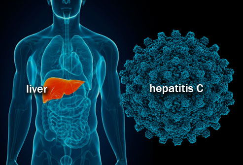 Hepatitis C: Viral Infection Signs Symptoms and Treatment