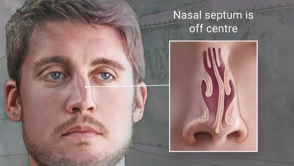 Deviated Septum Causes Symptoms Treatments Risks Recovery