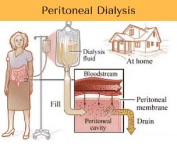 peritoneal-dialysis