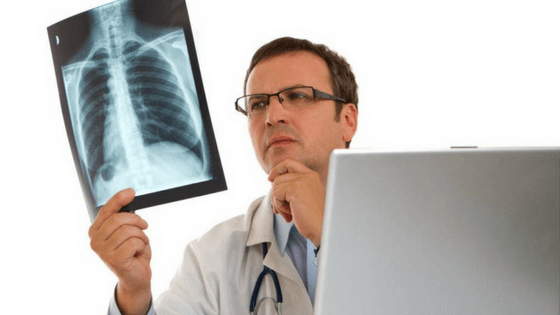 Treatment for mesothelioma lung cancer