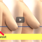 Top 5 Home Remedies To Make Sagging Breast Firm video