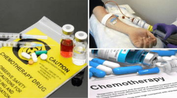 Top 5 Side Effects Of Chemotherapy Cancer Treatment