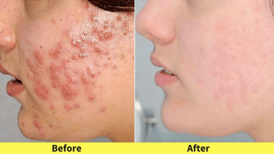 lighten acne scars naturally
