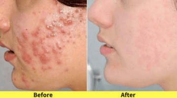 Lighten Acne Scars Naturally | 5 Simple Home Remedies