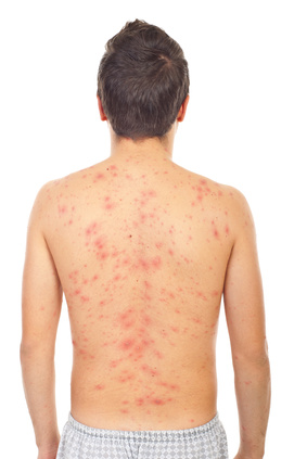 Adult Chicken Pox Or Shingles Healthy Skin Care