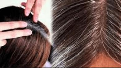 Photo of هل تعرف ما هي أفضل الطرق للقضاء على الشعر الأبيض نهائيا ؟