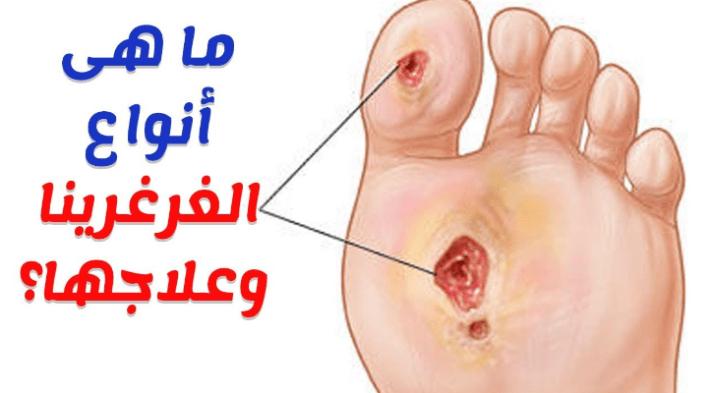 علاج الغرغرينا بالاعشاب