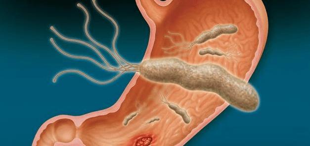 علاج جرثومة المعدة بالاعشاب