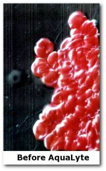 Red Blood Cells before drinking Aqualyte Water